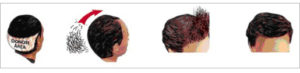 diagram of four different heads with hair