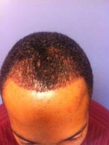 before photo of man's hairline