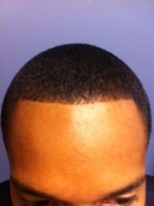 after photo of man's hairline
