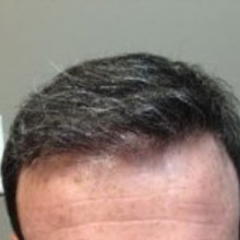 after hair restoration treatment