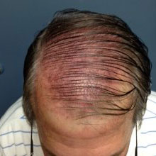 before hair restoration treatment